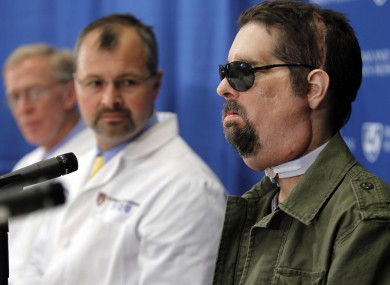 Face transplant recipient Dallas Wiens