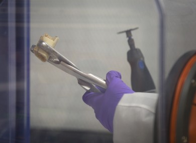 File: A scientist for the City of New York Office of Chief Medical Examiner handles a human bone fragment in preparation for DNA testing