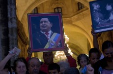 Chavez not in coma, responding well to treatment, says brother