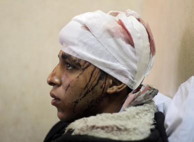Egyptian Mohammed Ali, 20, is treated at a hospital following a train crash in Badrasheen
