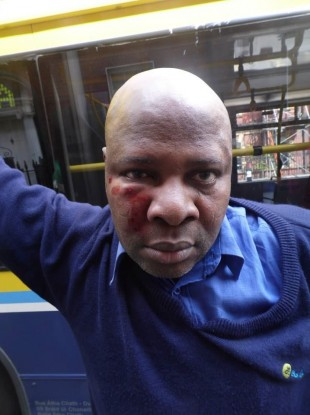 The Dublin Bus driver shortly after the attack.