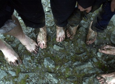 Pilgrims show their feet after climbing Croagh Patrick bare footed