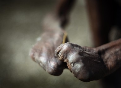 A file photo of a man with leprosy.