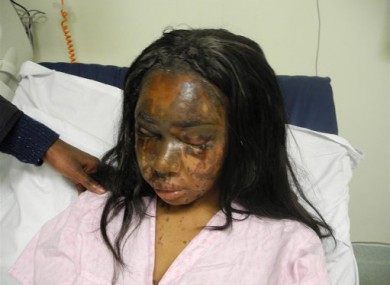 Naomi Oni after she had acid thrown in her face by Mary Konye.