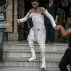 A Syrian man with more than half his body burnt from an air strike leaves a field hospital to go back home at a village turned into a battlefield with government forces in Idlib province, northern Syria. (AP Photo)<span class=