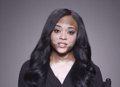 Cheri Lindsay, who has vitiligo