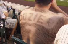 Baseball fan pays tribute to favourite player with 'back hair jersey'