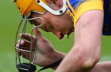 Séamus Callanan was stuck in a dental surgery following yesterday's Munster semi-final