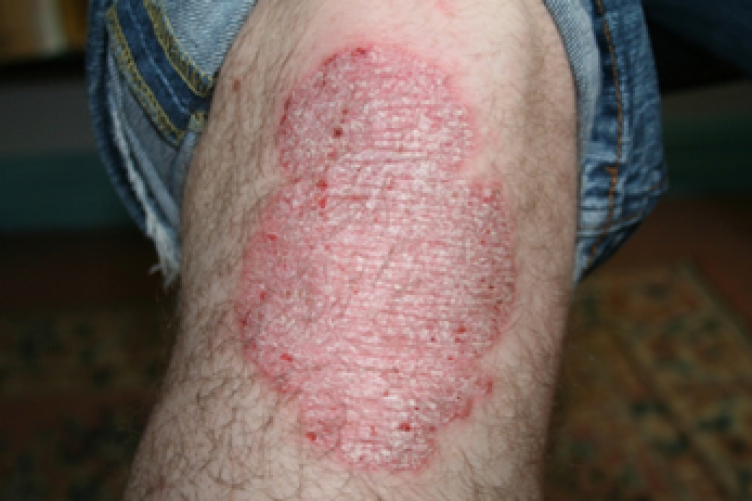 Pictures of a patient with psoriasis (and psoriatic arthritis) at baseline and 8 weeks after initiation of infliximab therapy 2