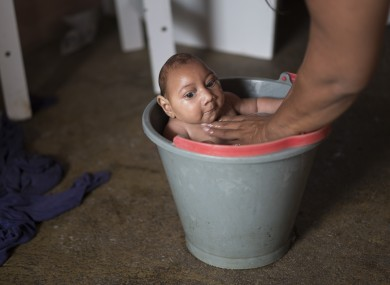 A baby with microcephaly is bathed at his home in Brazil, where the Zika virus was first detected last year.