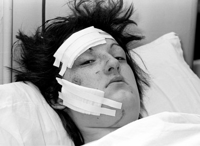 Barbara Lane, 21, one of the victims of the bomb attack on the Tavern in the Town pub in hospital in 1974.