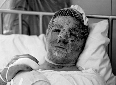 Gary Cowan, 16,in a Birmingham hospital following the 1974 bomb attack on the Tavern in the Town pub.