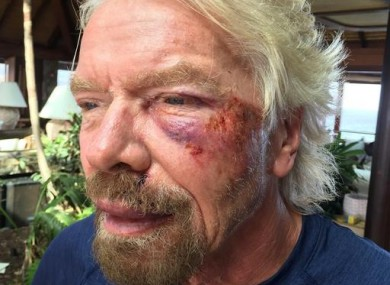 Sir Richard Branson after he was involved in an accident when he crashed his bicycle.