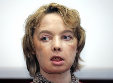 Isabelle Dinoire, the woman who received the world's first partial face transplant