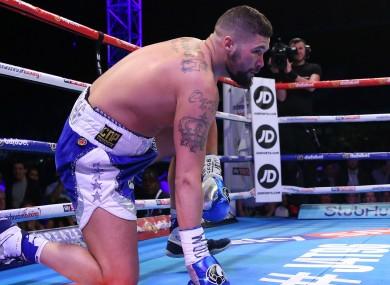 British boxer Tony Bellew