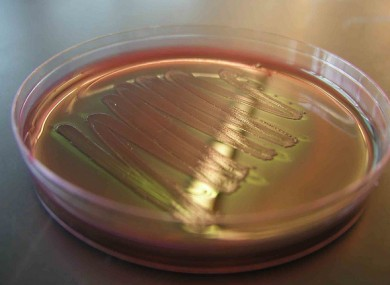 File photo of a sample of E.coli in a Petri dish.
