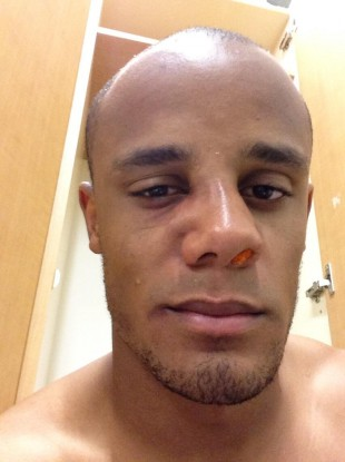 The picture that Kompany tweeted today.