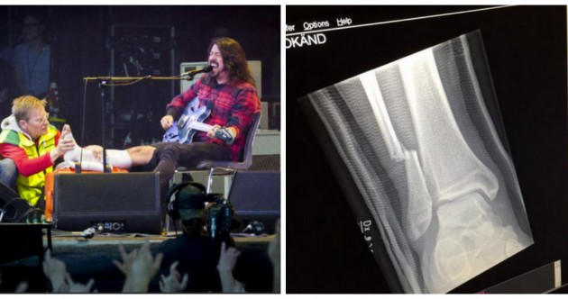 Dave Grohl has broken his leg in concert - and he kept right on playing.