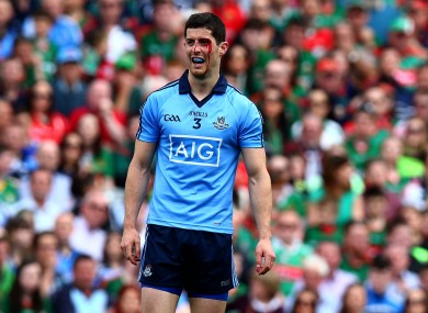 There's defensive injury worries for both Dublin and Mayo