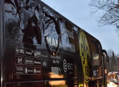 The damaged Borussia Dortmund bus.