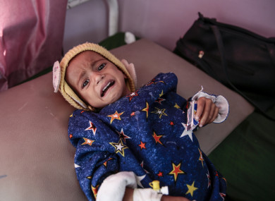 A malnourished child lies in a bed at a therapeutic feeding centre in a hospital in Sanaa, Yemen