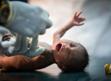 A malnourished infant receiving treatment from MSF staff in South Sudan.