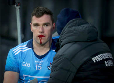 Andrews was left with a bloodied face after the collision.