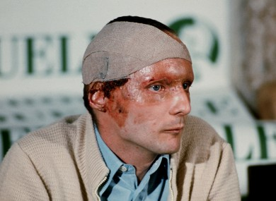 The Austrian Formula 1 driver Niki Lauda with scarred face, head bandage and burns during a press conference after a near-fatal accident.