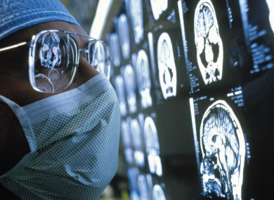An artificial-intelligence system can diagnose dementia after one brain scan.